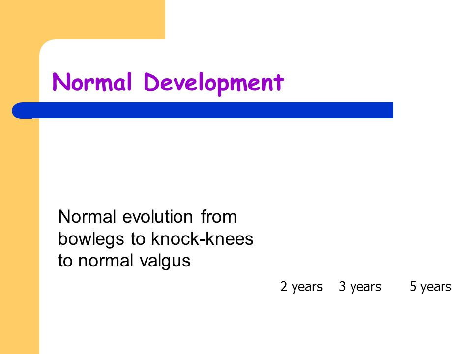 Normal Development Normal evolution from bowlegs to knock-knees to normal valgus 2 years 3 years 5 years