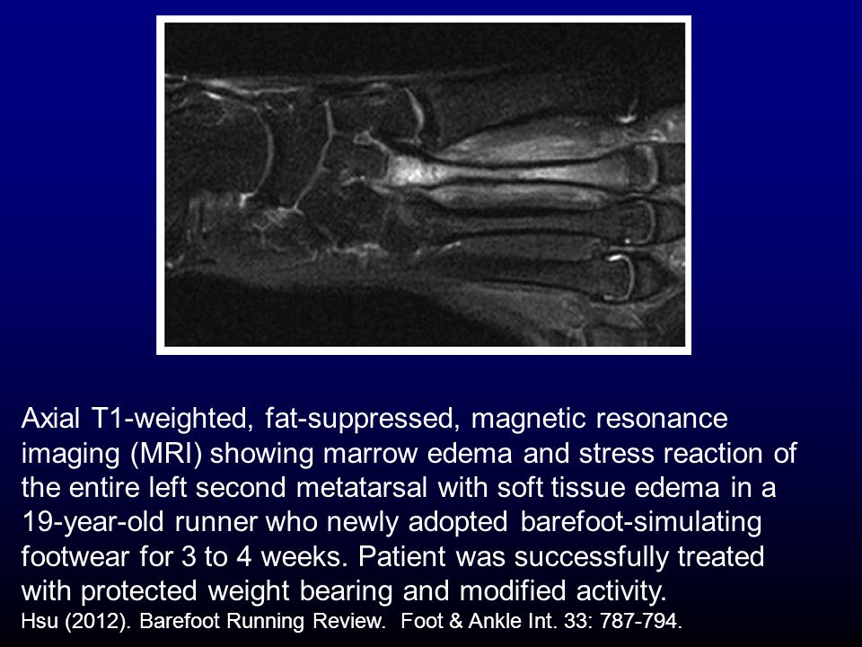 Axial T1-weighted, fat-suppressed, magnetic resonance imaging (MRI) showing marrow edema and stress reaction of the entire left second metatarsal with soft tissue edema in a 19-year-old runner who newly adopted barefoot-simulating footwear for 3 to 4 weeks.