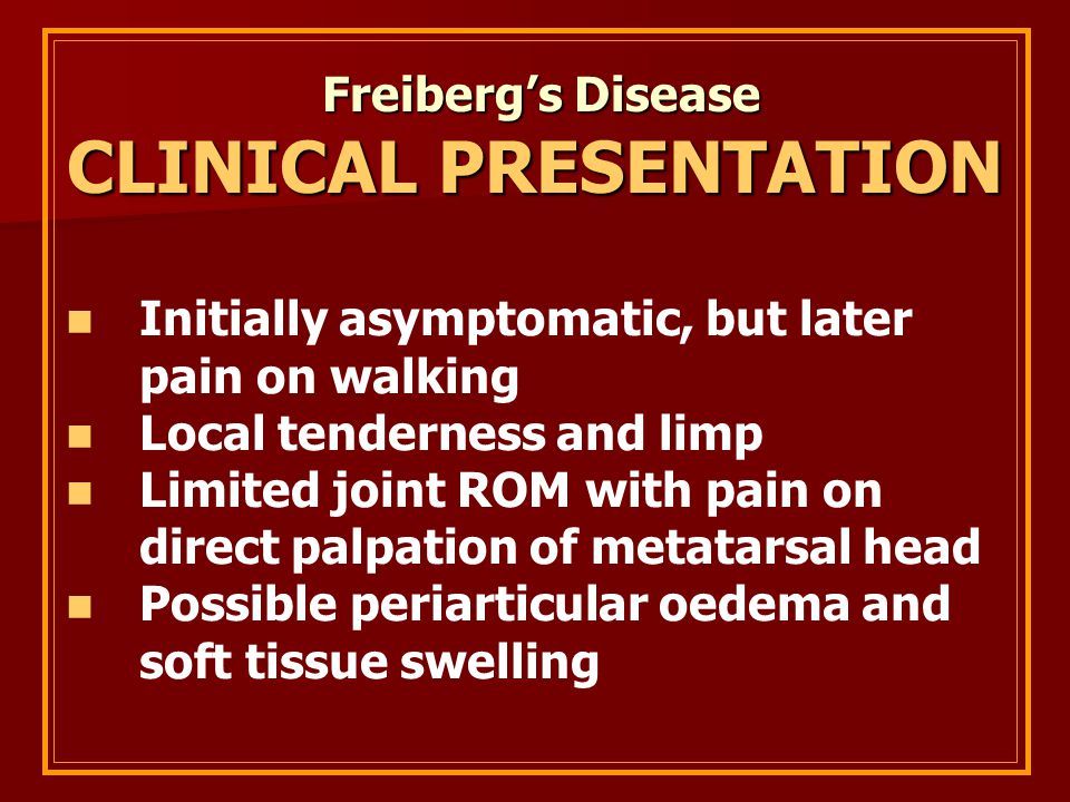 Freiberg's Disease Freiberg's Disease CLINICAL PRESENTATION Initially asymptomatic, but later pain on walking Local tenderness and limp Limited joint ROM with pain on direct palpation of metatarsal head Possible periarticular oedema and soft tissue swelling