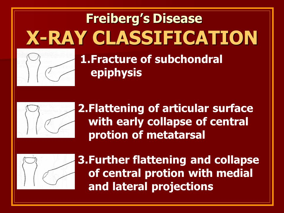 Freiberg's Disease Freiberg's Disease X-RAY CLASSIFICATION 1.Fracture of subchondral epiphysis 2.Flattening of articular surface with early collapse o