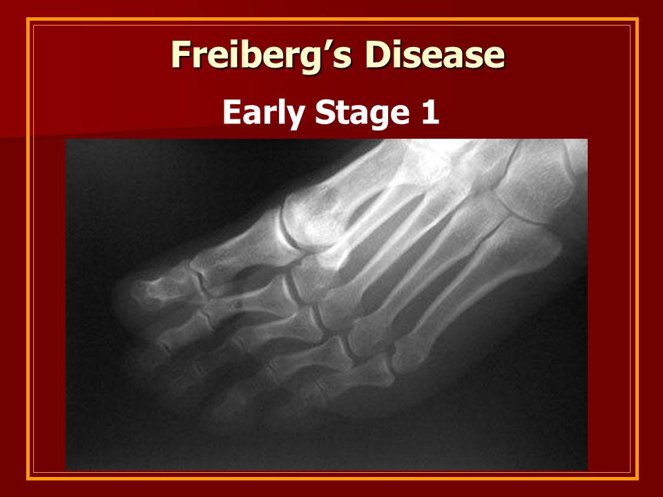 Freiberg's Disease Freiberg's Disease Early Stage 1