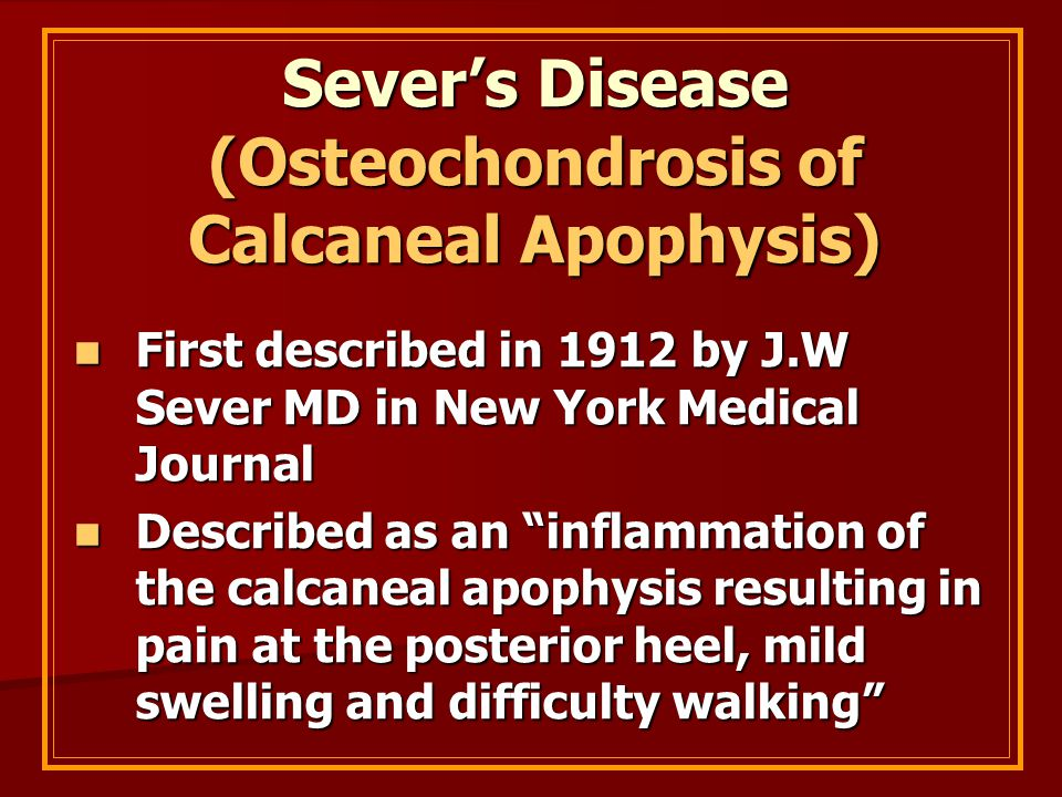 Sever's Disease (Osteochondrosis of Calcaneal Apophysis) First described in 1912 by J.W Sever MD in New York Medical Journal First described in 1912 b