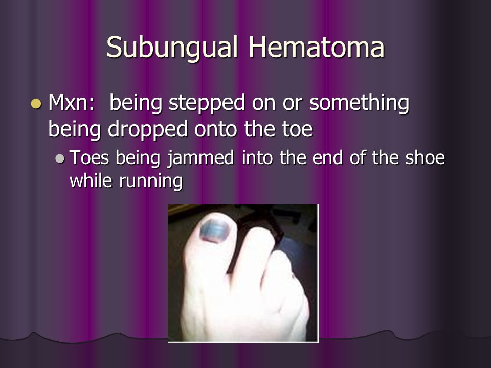 Subungual Hematoma Mxn: being stepped on or something being dropped onto the toe Mxn: being stepped on or something being dropped onto the toe Toes be