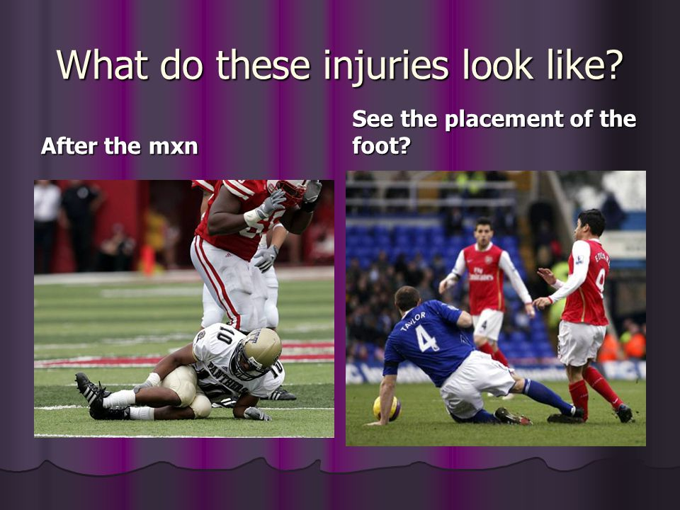 What do these injuries look like? After the mxn See the placement of the foot?