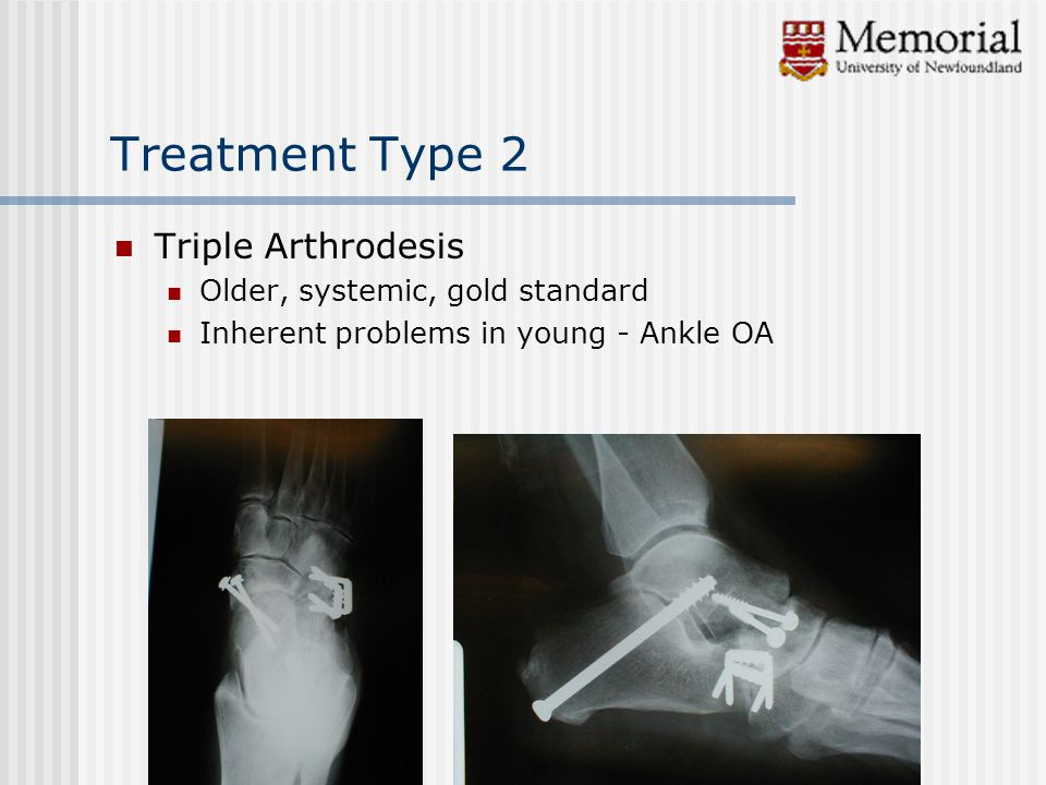 Treatment Type 2 Triple Arthrodesis Older, systemic, gold standard Inherent problems in young - Ankle OA