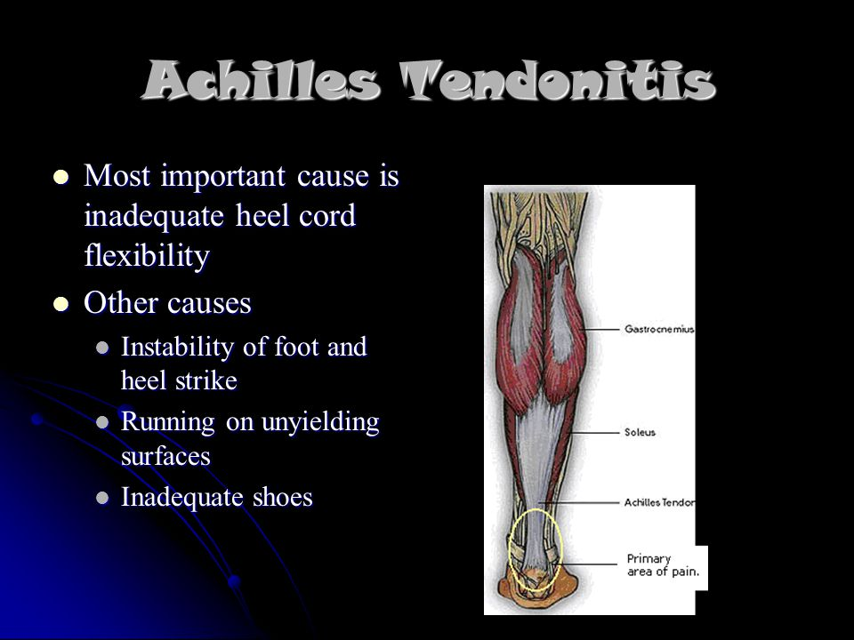Achilles Tendonitis Most important cause is inadequate heel cord flexibility Most important cause is inadequate heel cord flexibility Other causes Other causes Instability of foot and heel strike Instability of foot and heel strike Running on unyielding surfaces Running on unyielding surfaces Inadequate shoes Inadequate shoes