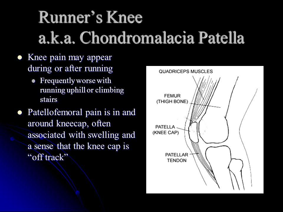 Runner's Knee a.k.a.