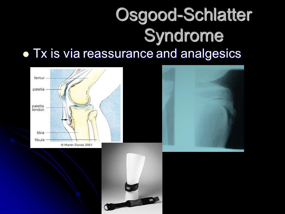 Osgood-Schlatter Syndrome Tx is via reassurance and analgesics Tx is via reassurance and analgesics