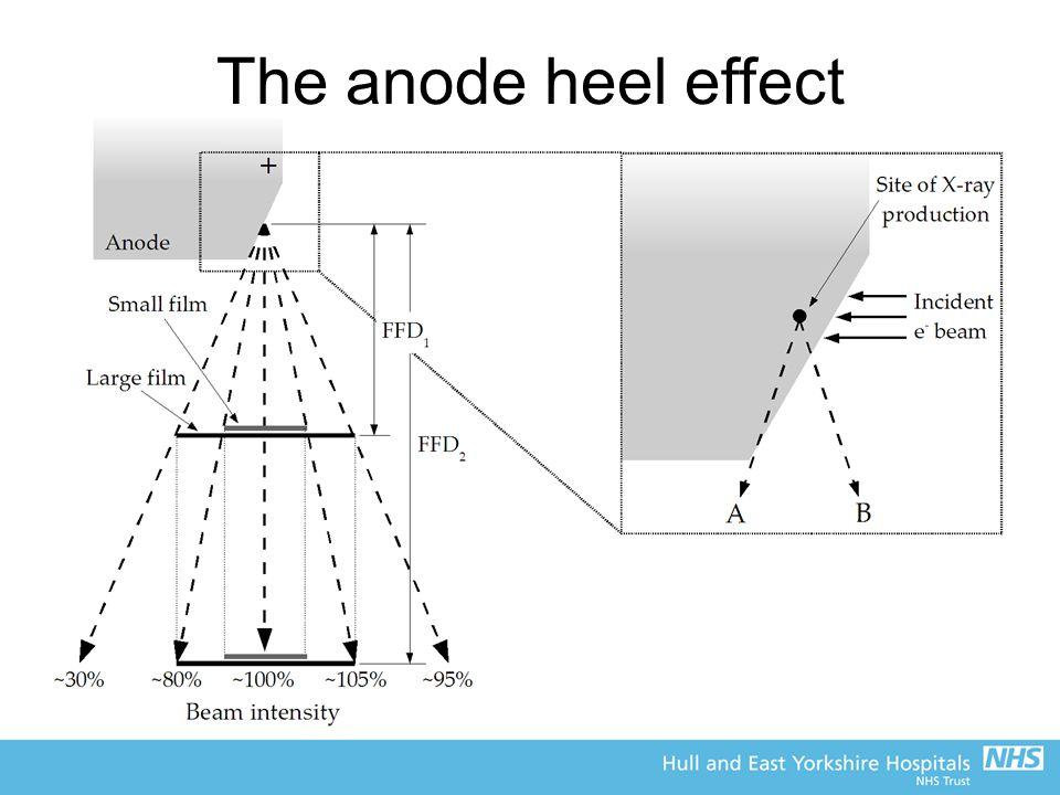 The anode heel effect