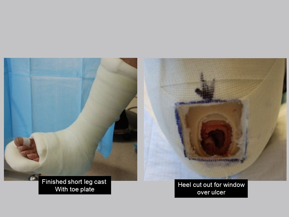Finished short leg cast With toe plate Heel cut out for window over ulcer