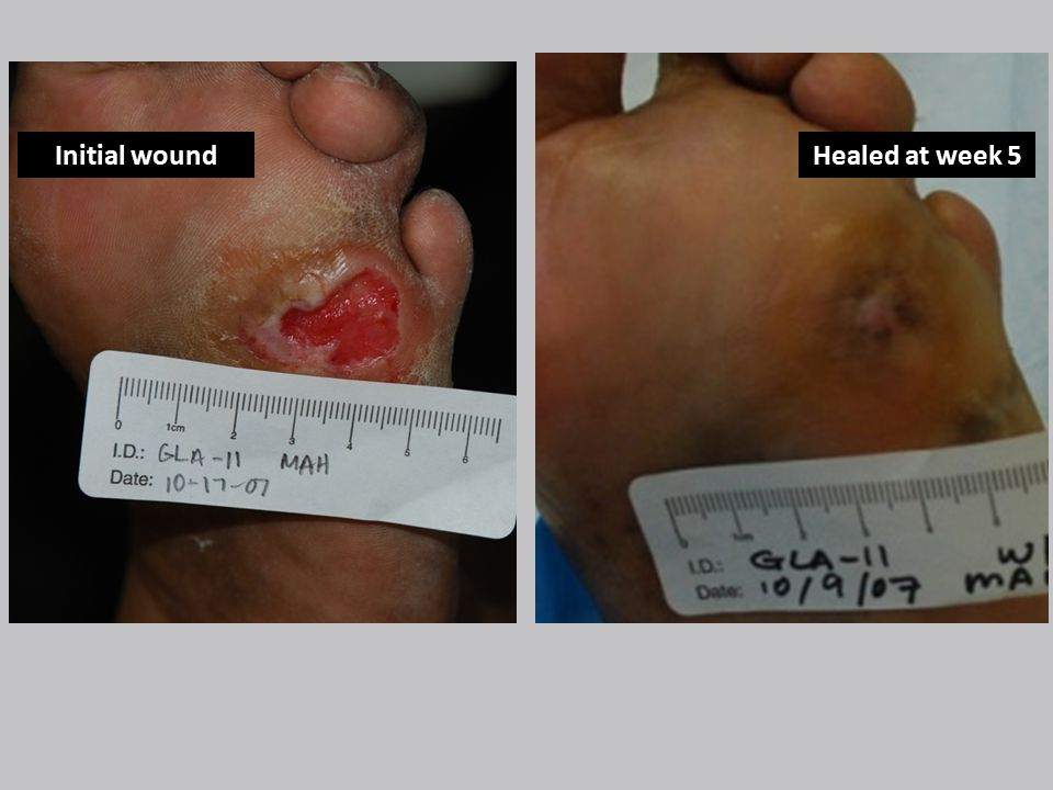 Before Healed at week 5Initial wound