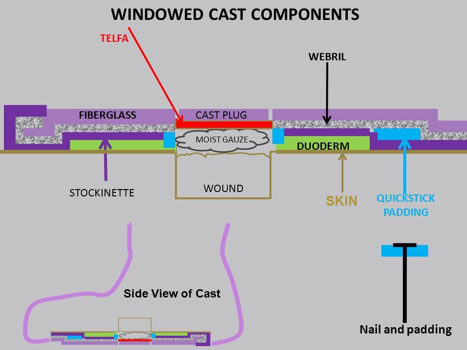 WOUND MOIST GAUZE CAST PLUG TELFA QUICKSTICK PADDING FIBERGLASS DUODERM STOCKINETTE WEBRIL WINDOWED CAST COMPONENTS Nail and padding Side View of Cast SKIN