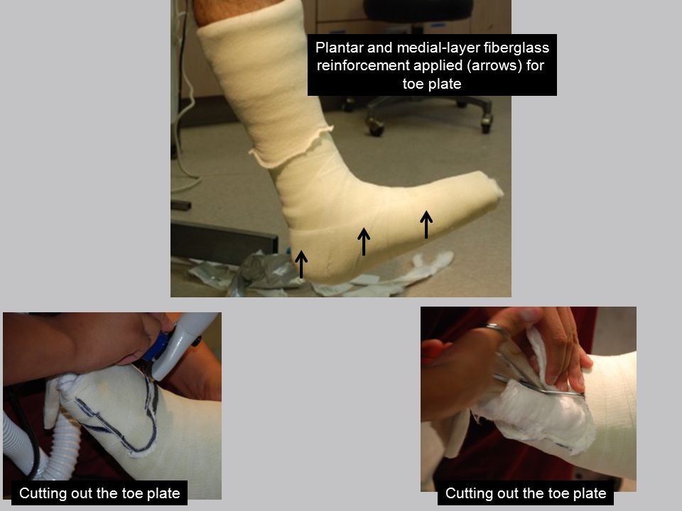 Plantar and medial-layer fiberglass reinforcement applied (arrows) for toe plate Cutting out the toe plate
