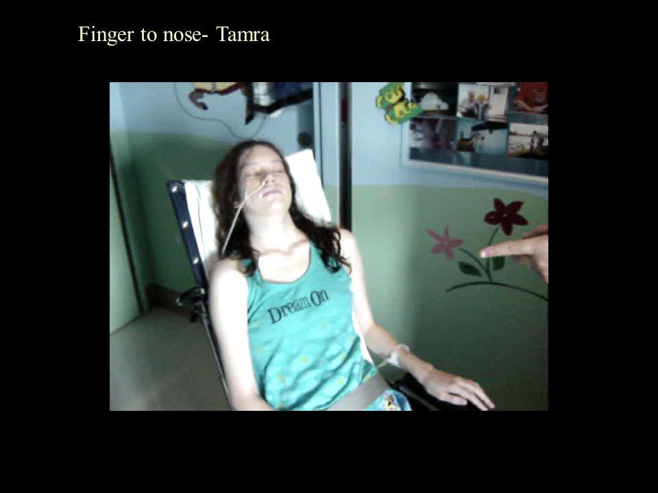 Finger to nose- Tamra