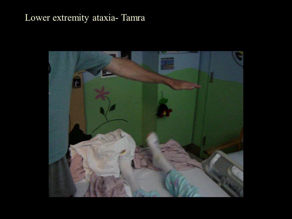 Lower extremity ataxia- Tamra