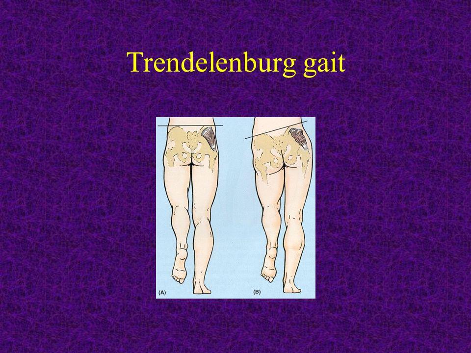 Trendelenburg gait