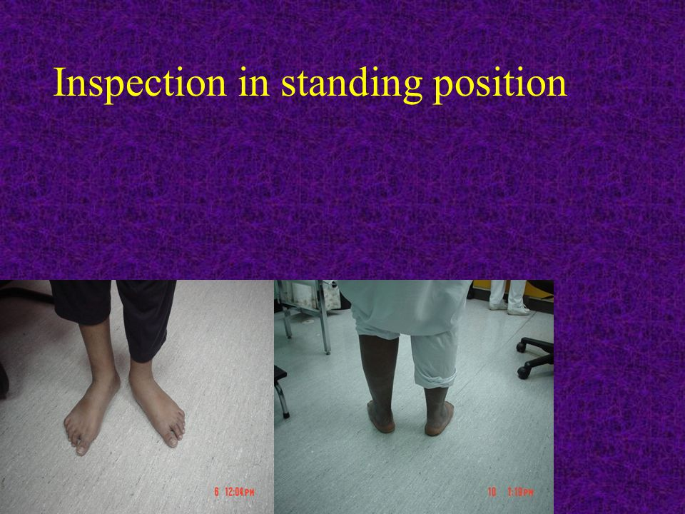 Inspection in standing position