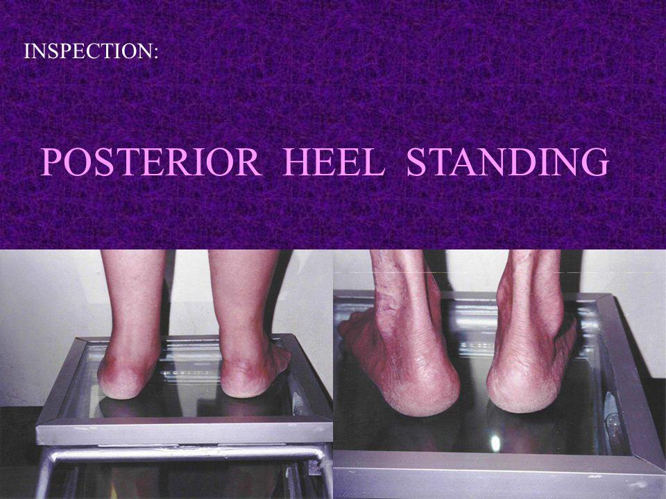 INSPECTION: POSTERIOR HEEL STANDING