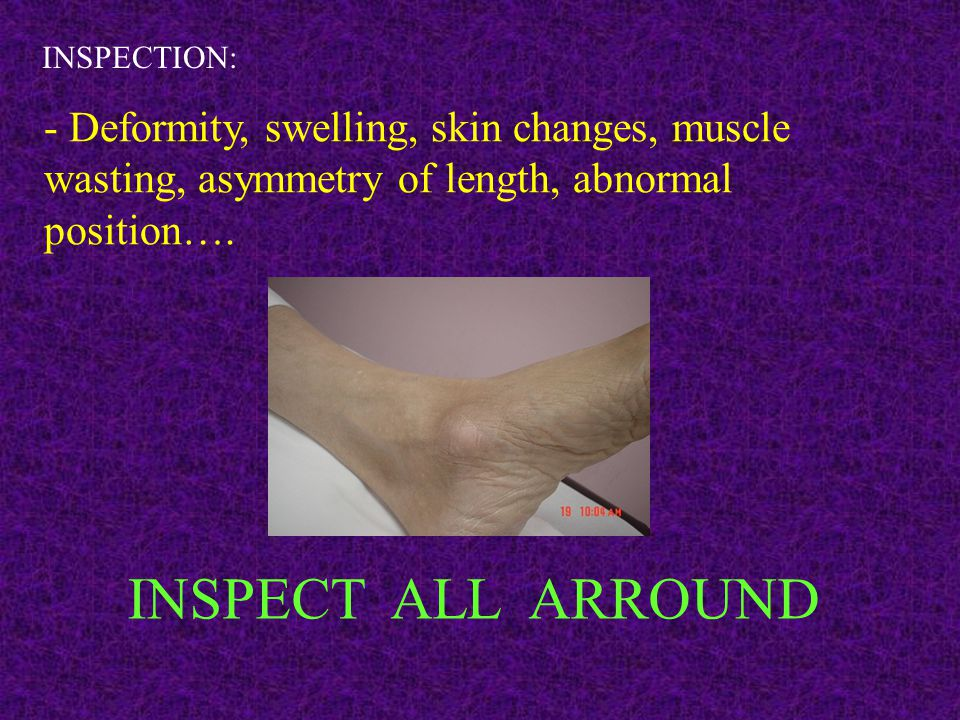 INSPECTION: - Deformity, swelling, skin changes, muscle wasting, asymmetry of length, abnormal position….