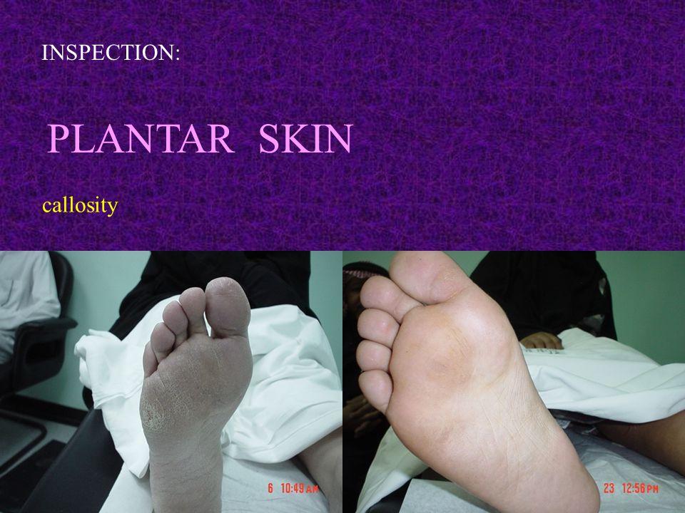 INSPECTION: PLANTAR SKIN callosity