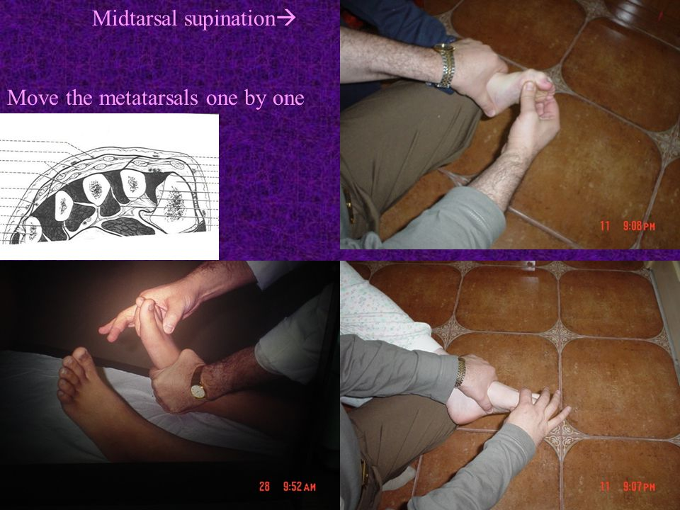 Midtarsal supination  Move the metatarsals one by one