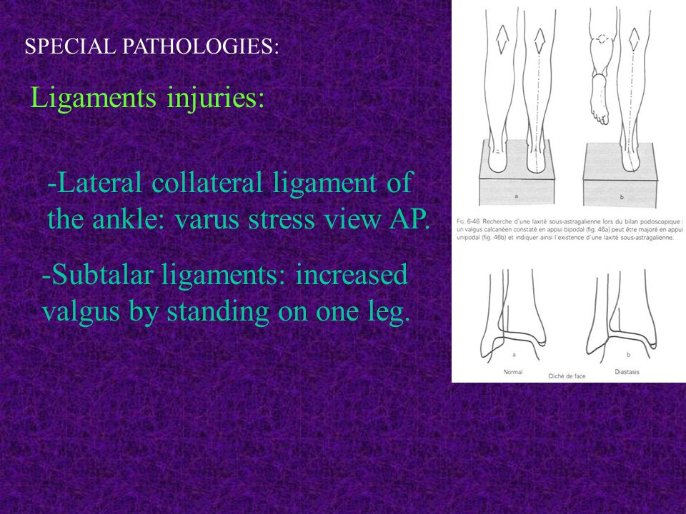 SPECIAL PATHOLOGIES: Ligaments injuries: -Lateral collateral ligament of the ankle: varus stress view AP. -Subtalar ligaments: increased valgus by sta