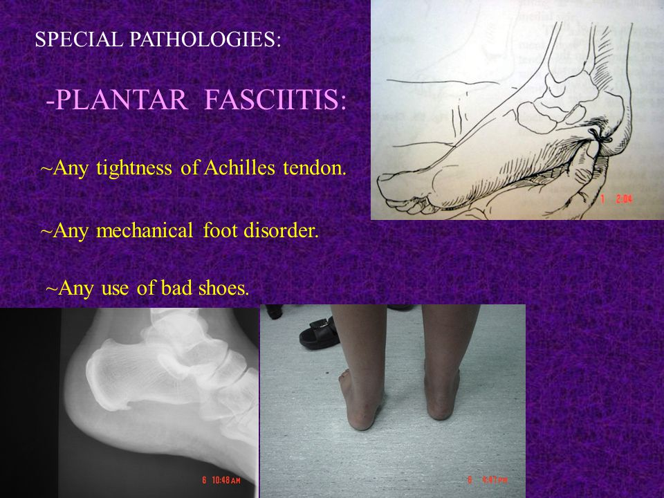 SPECIAL PATHOLOGIES: -PLANTAR FASCIITIS: ~Any tightness of Achilles tendon.