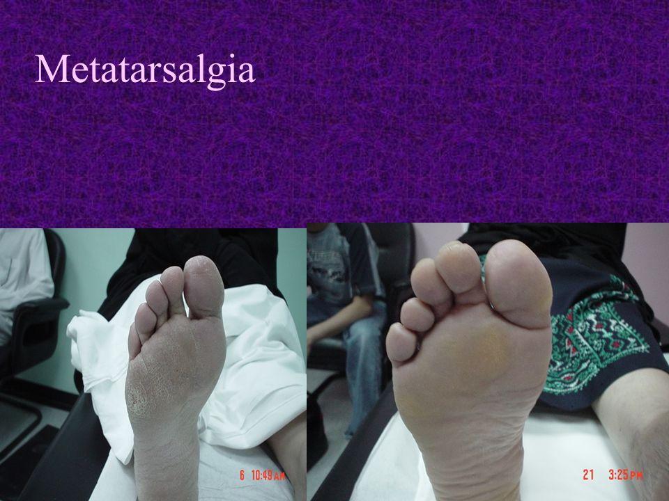 Metatarsalgia