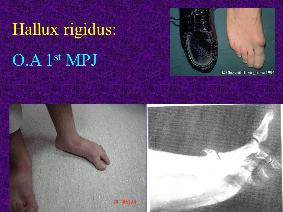 Hallux rigidus: O.A 1 st MPJ