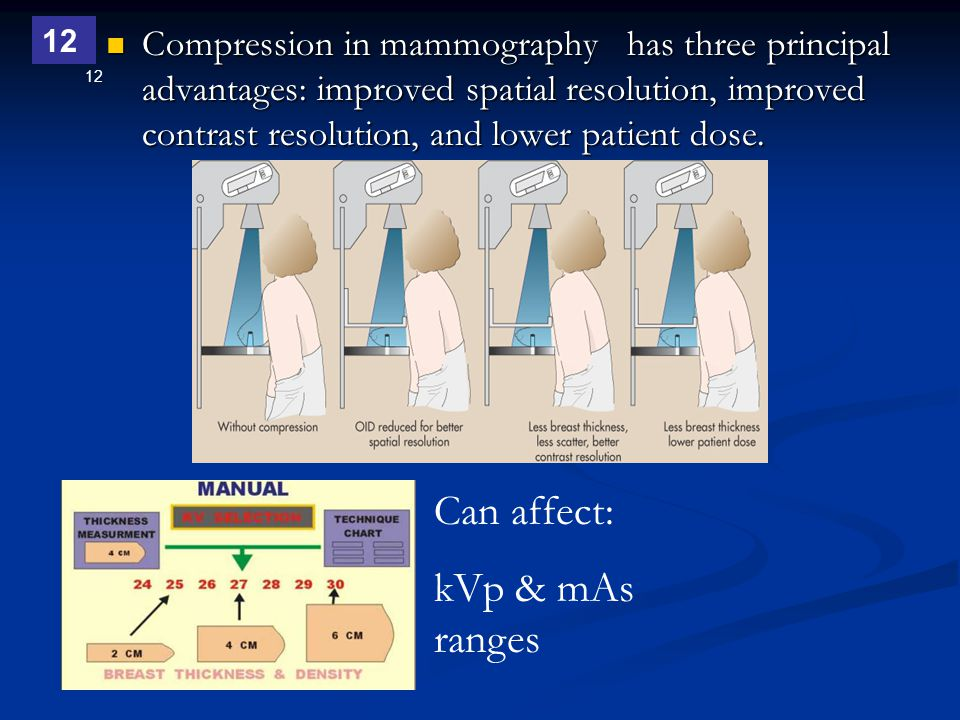 12 Compression in mammography has three principal advantages: improved spatial resolution, improved contrast resolution, and lower patient dose. Compr
