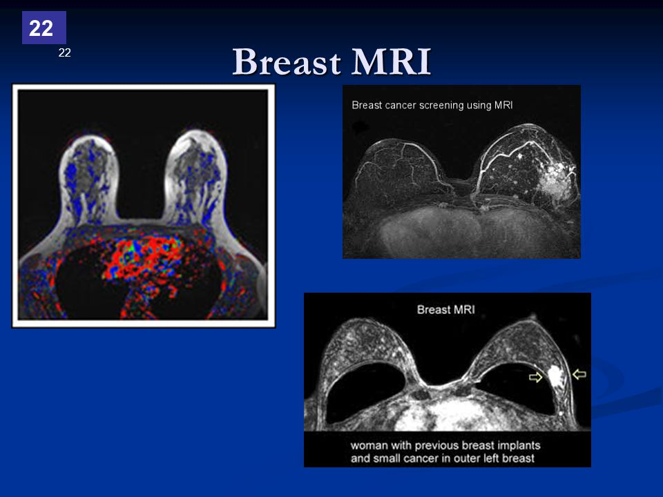 22 Breast MRI 22