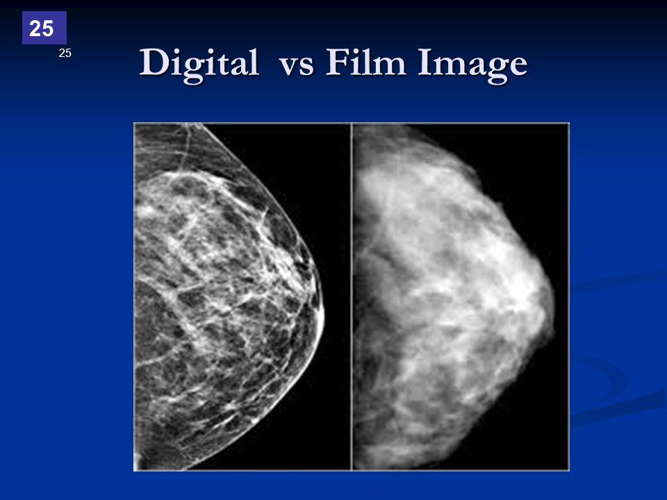 25 Digital vs Film Image 25