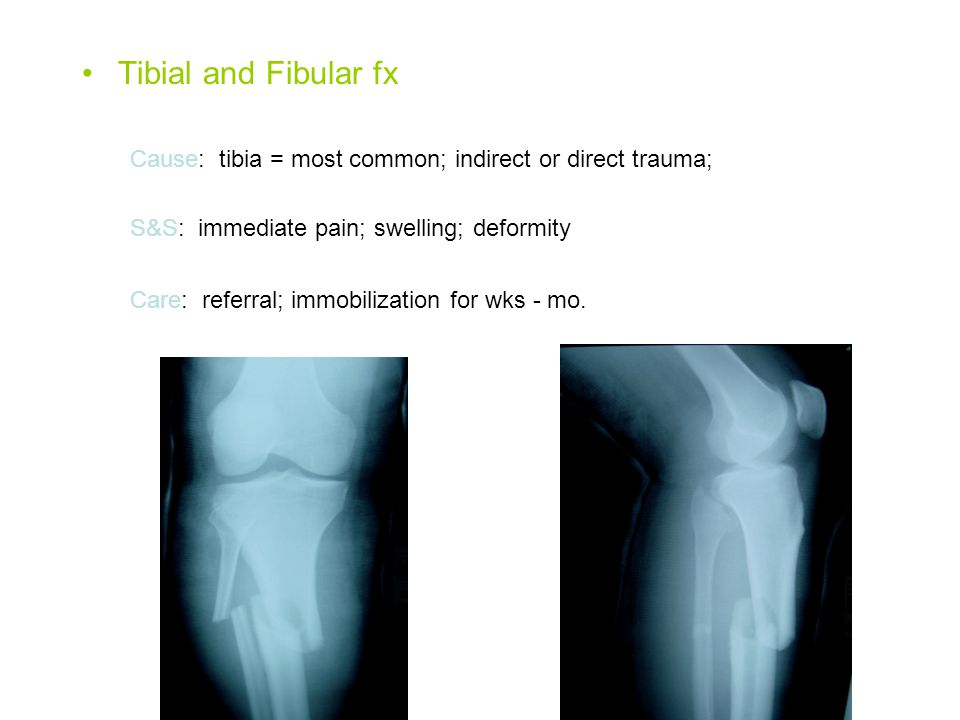 Tibial and Fibular fx Cause: tibia = most common; indirect or direct trauma; S&S: immediate pain; swelling; deformity Care: referral; immobilization for wks - mo.