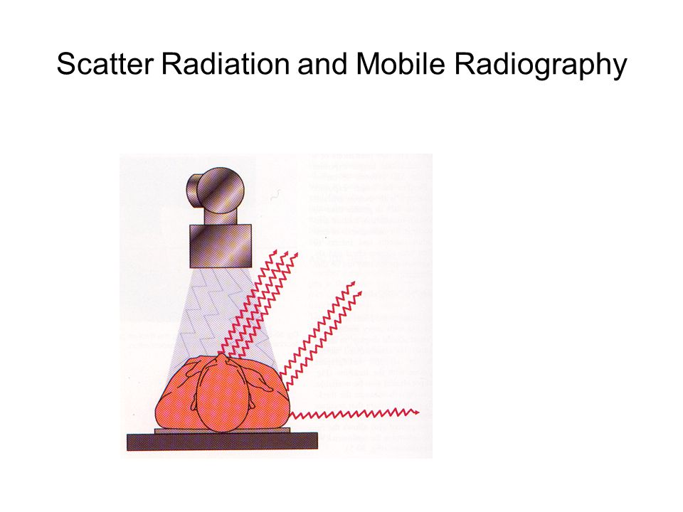 Scatter Radiation and Mobile Radiography