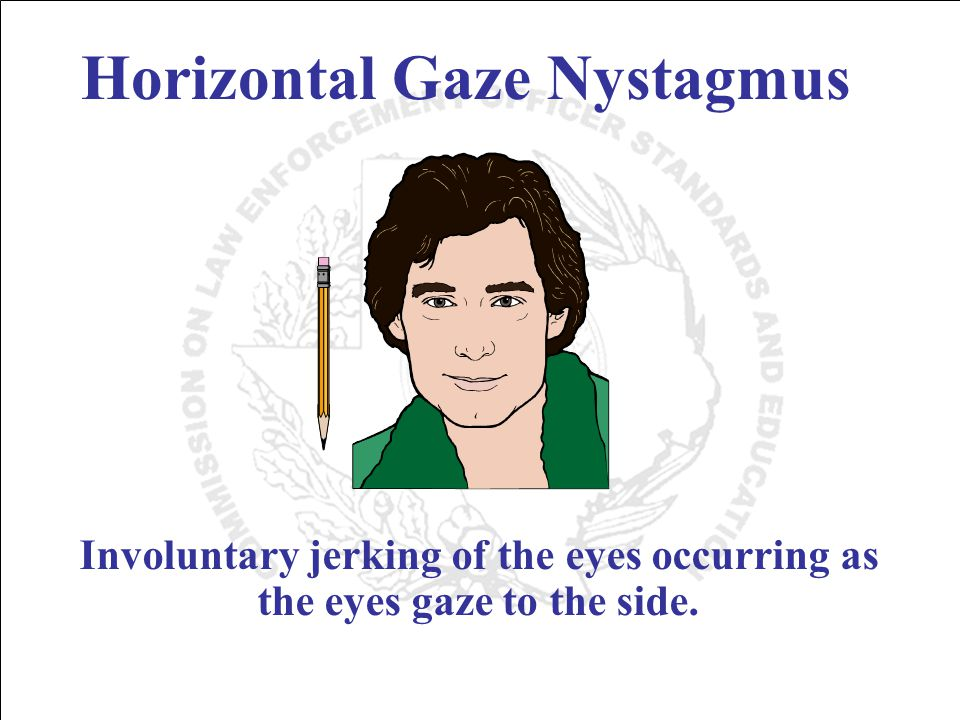 Horizontal Gaze Nystagmus Involuntary jerking of the eyes occurring as the eyes gaze to the side.