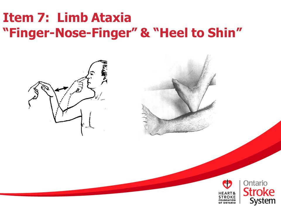 "Item 7: Limb Ataxia ""Finger-Nose-Finger"" & ""Heel to Shin"""