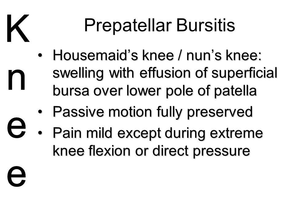 Prepatellar Bursitis Housemaid's knee / nun's knee: swelling with effusion of superficial bursa over lower pole of patellaHousemaid's knee / nun's kne