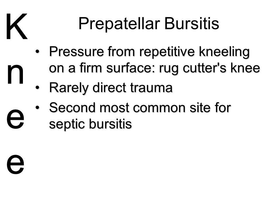 Prepatellar Bursitis Pressure from repetitive kneeling on a firm surface: rug cutter's kneePressure from repetitive kneeling on a firm surface: rug cu