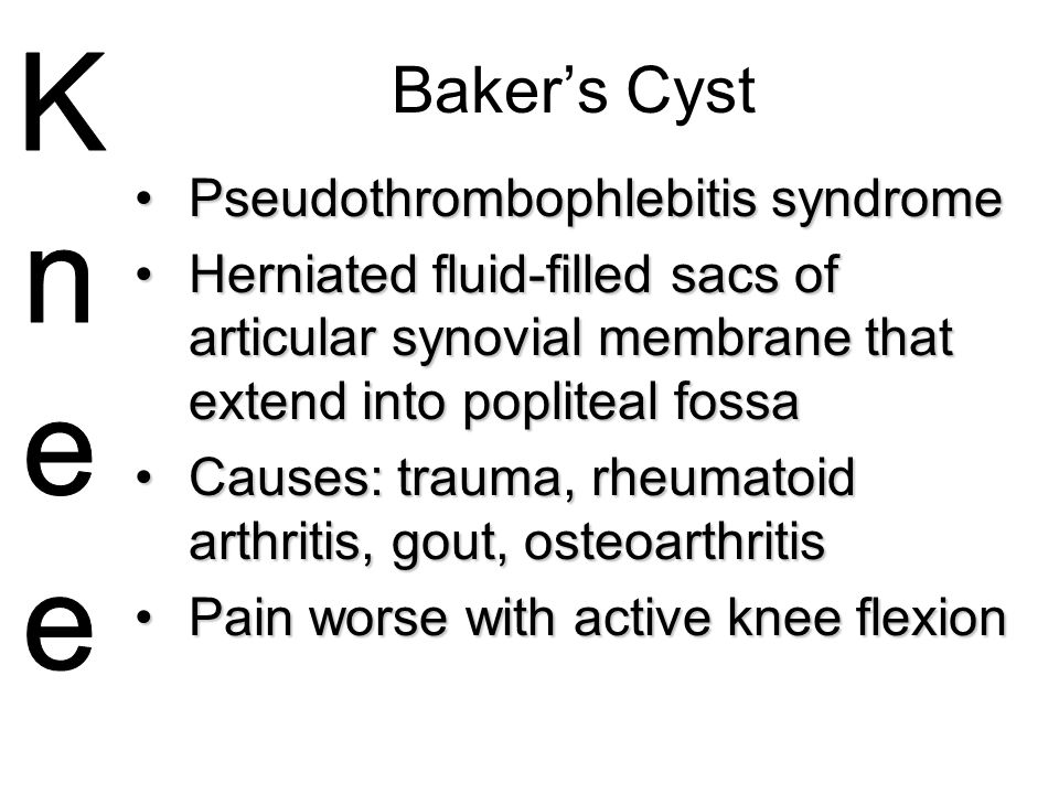 Baker's Cyst Pseudothrombophlebitis syndromePseudothrombophlebitis syndrome Herniated fluid-filled sacs of articular synovial membrane that extend int