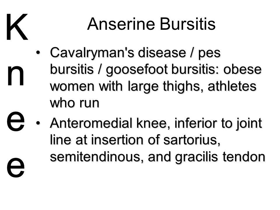 Anserine Bursitis Cavalryman's disease / pes bursitis / goosefoot bursitis: obese women with large thighs, athletes who runCavalryman's disease / pes
