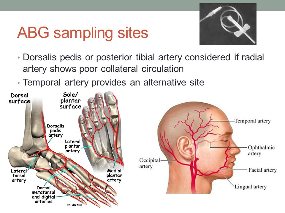 ABG sampling sites Brachial and femoral sites are avoided because both feed large distal networks and neither has collateral circulation Brachial site