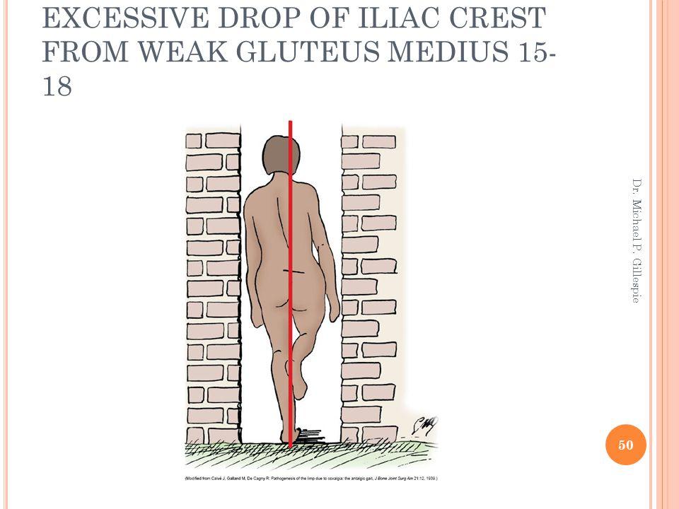 EXCESSIVE DROP OF ILIAC CREST FROM WEAK GLUTEUS MEDIUS 15- 18 50 Dr. Michael P. Gillespie