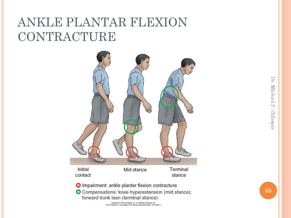 ANKLE PLANTAR FLEXION CONTRACTURE 55 Dr. Michael P. Gillespie