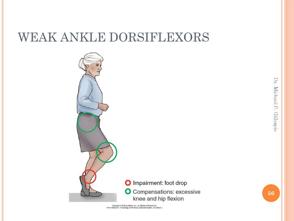 WEAK ANKLE DORSIFLEXORS 56 Dr. Michael P. Gillespie