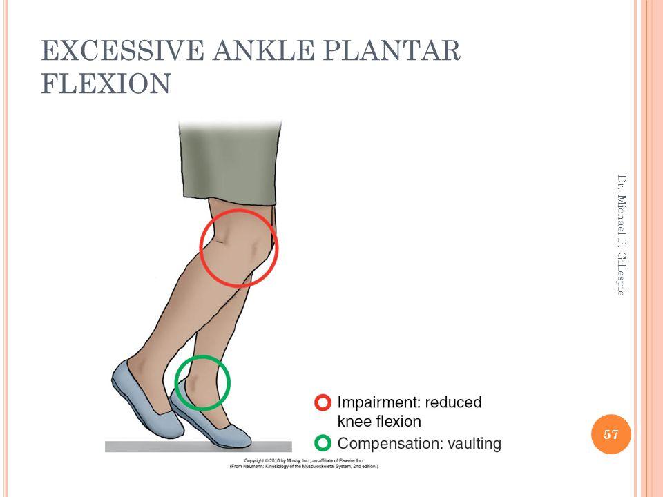 EXCESSIVE ANKLE PLANTAR FLEXION 57 Dr. Michael P. Gillespie