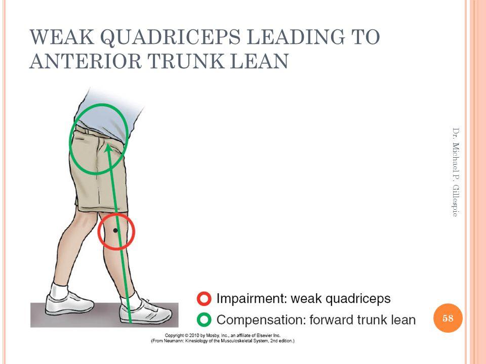 WEAK QUADRICEPS LEADING TO ANTERIOR TRUNK LEAN 58 Dr. Michael P. Gillespie