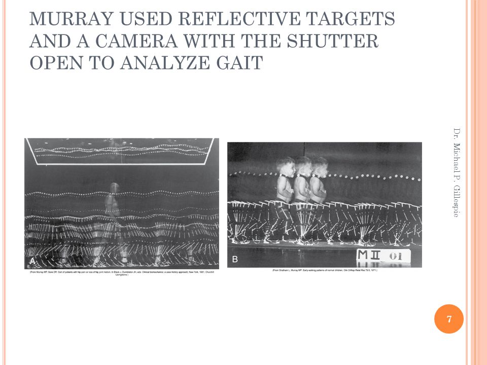 MURRAY USED REFLECTIVE TARGETS AND A CAMERA WITH THE SHUTTER OPEN TO ANALYZE GAIT Dr. Michael P. Gillespie 7