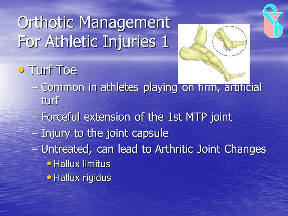 Orthotic Management For Athletic Injuries 1 Turf Toe Turf Toe –Common in athletes playing on firm, artificial turf –Forceful extension of the 1st MTP