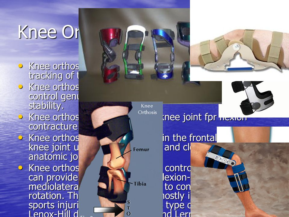 Knee Orthoses Knee orthoses for patellofemoral disorder: to control tracking of the patella during knee flexion and extension. Knee orthoses for patel
