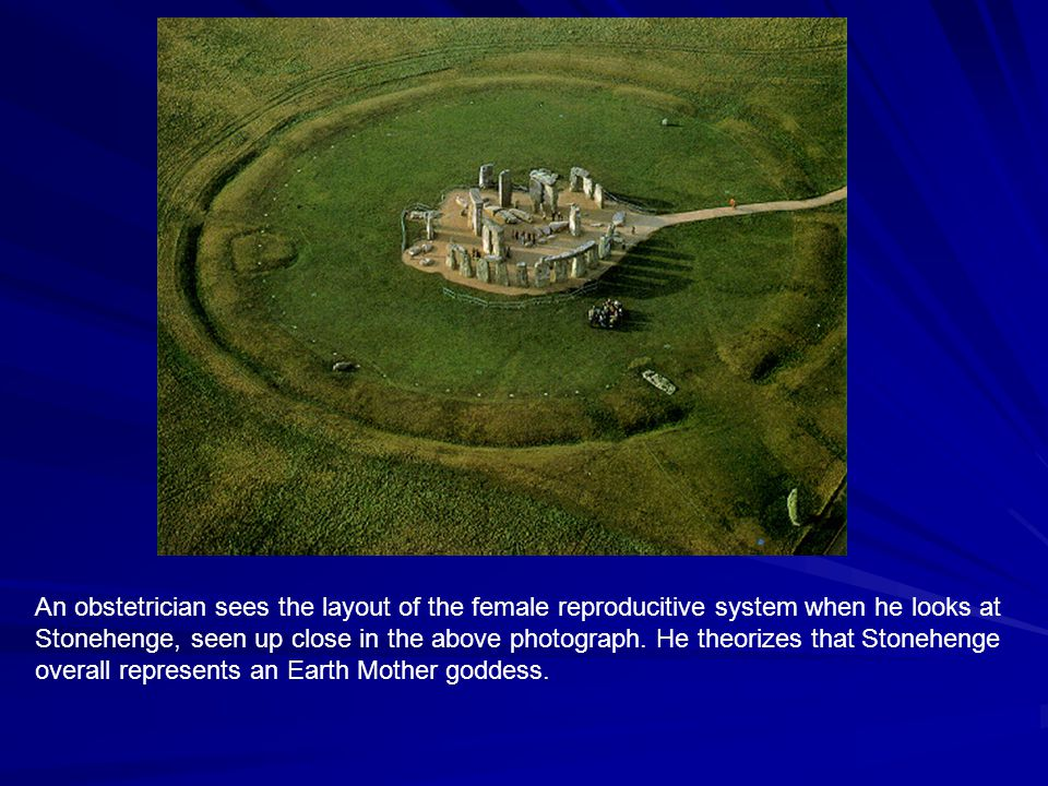 An obstetrician sees the layout of the female reproducitive system when he looks at Stonehenge, seen up close in the above photograph.